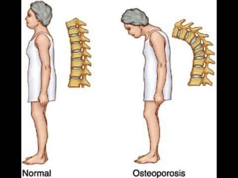 Bolehkah Osteoporosis Dicegah Tanpa Susu? Ketahuinya Disini!