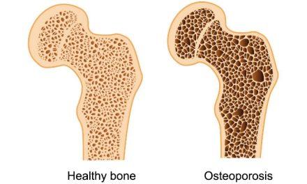 Apa itu Osteoporosis atau tulang rapuh? Ketahui lebih lanjut disini!